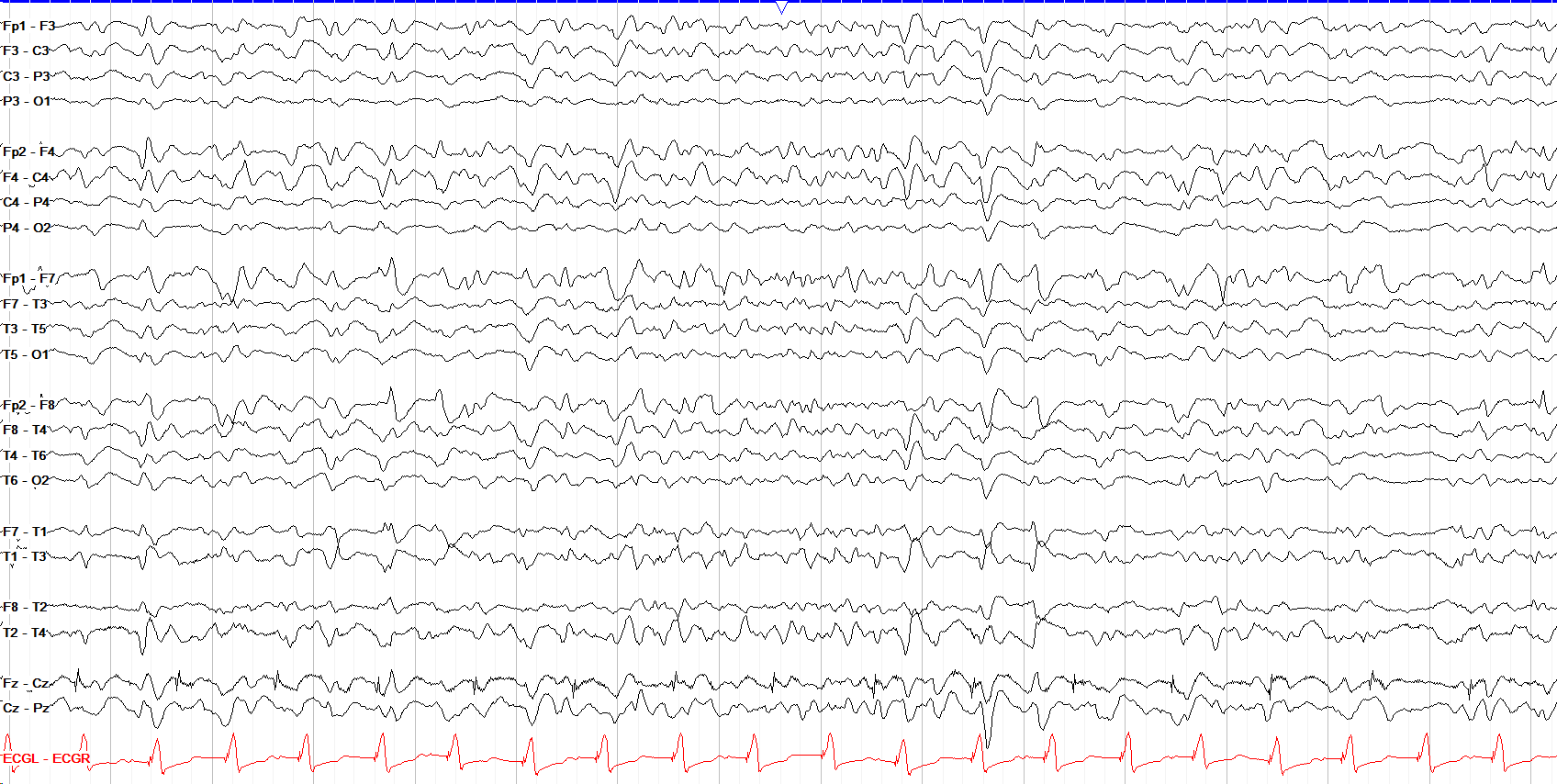 diffuse excess beta activity