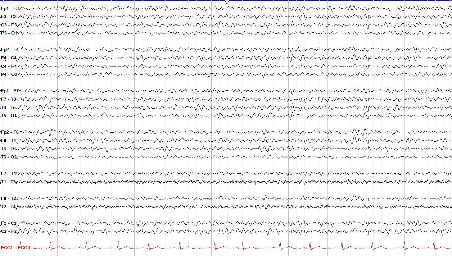 Theta frequency waves