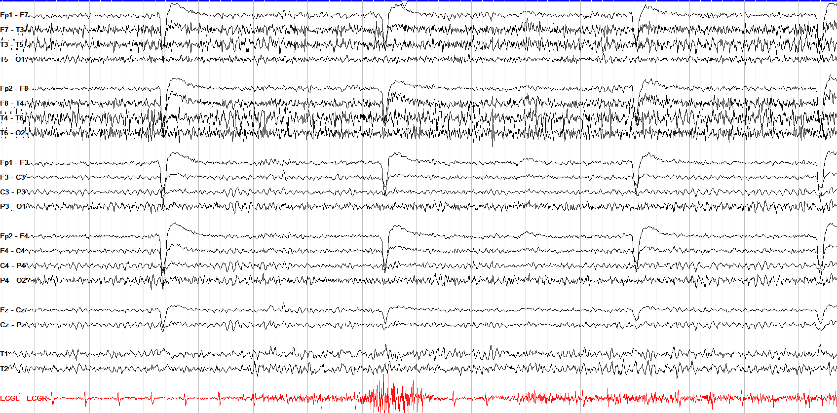 photic driving 6 Hz