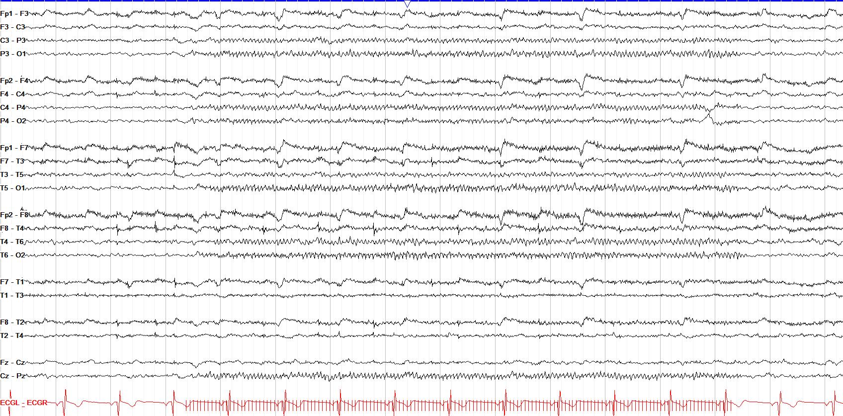 photic driving 15 Hz