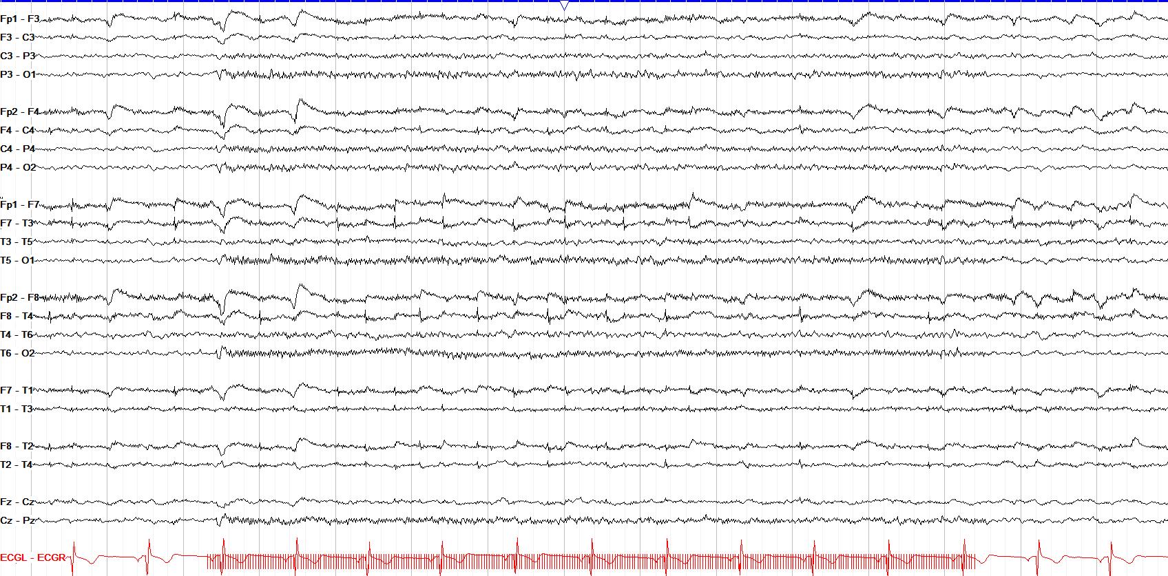 photic driving 30 Hz