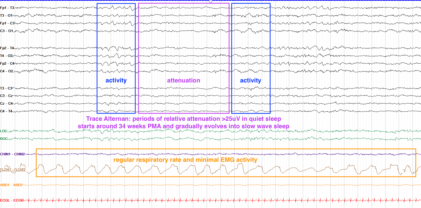 Delta frequency waves