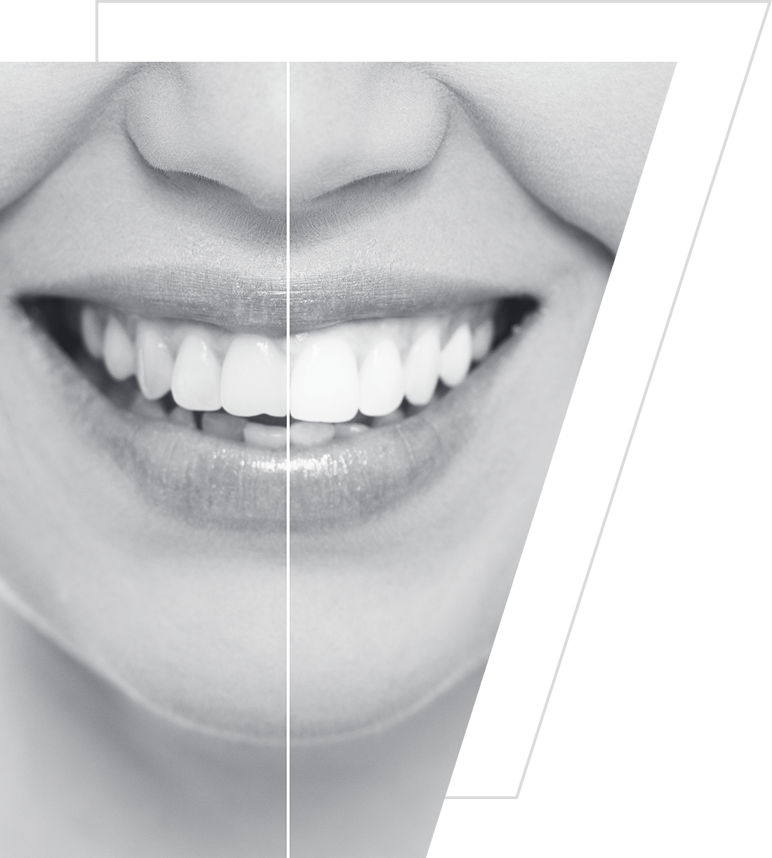 Photo comparing teeth before and after whitening