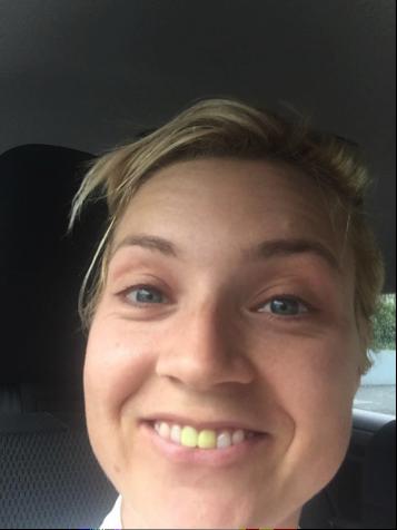 Helens teeth are yellow