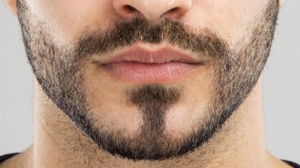 Kiểu râu bóng đổ 5 giờ