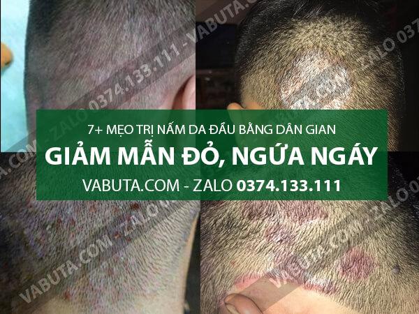 cách trị nấm da đầu