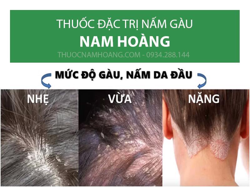 trị gàu cũng như ngứa da đầu