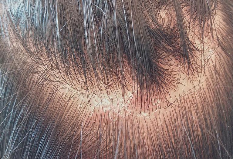 nấm da đầu  gây rụng tóc