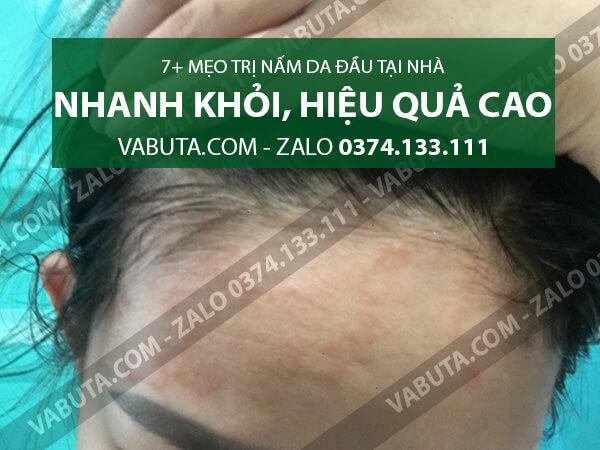 cách chữa nấm da đầu