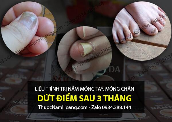 cách chữa nấm móng tay chân