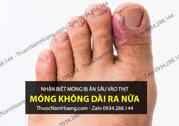 móng tay chân bị ăn sâu vào thịt