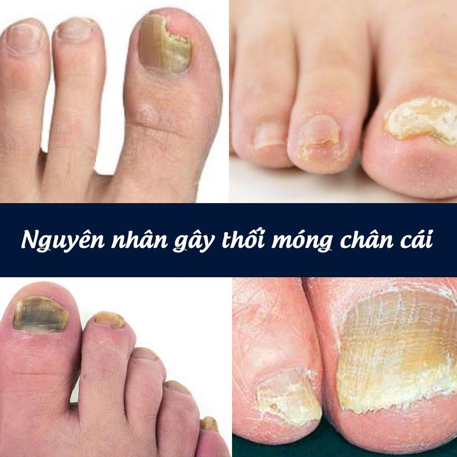 nguyên nhân thối  móng chân cái