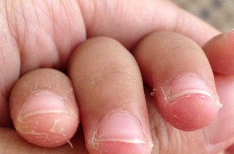 Tróc da ở đầu ngón tay
