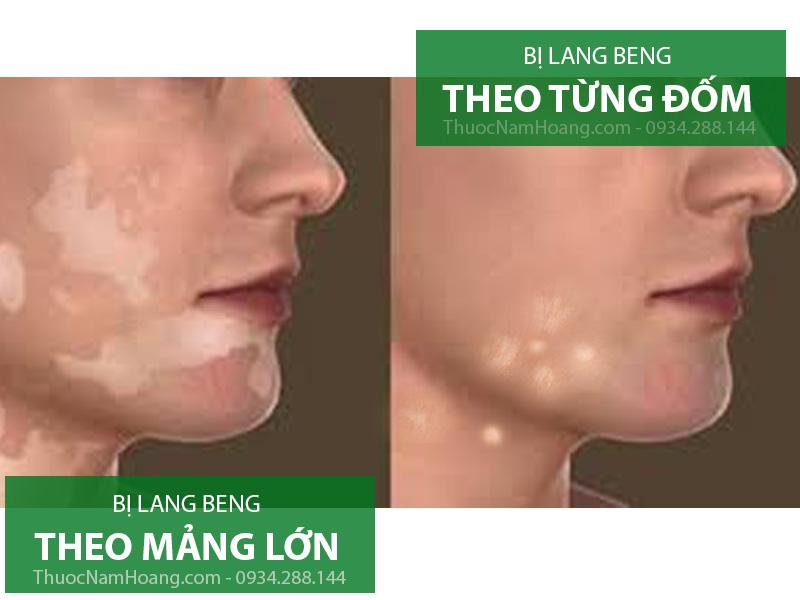 lang ben trên mặt
