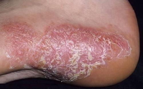 chàm khô ở tay chân