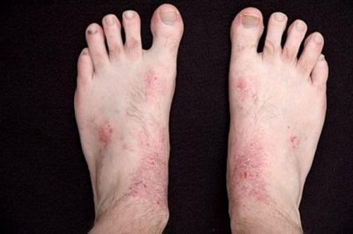 nguyên nhân chàm khô ở tay chân