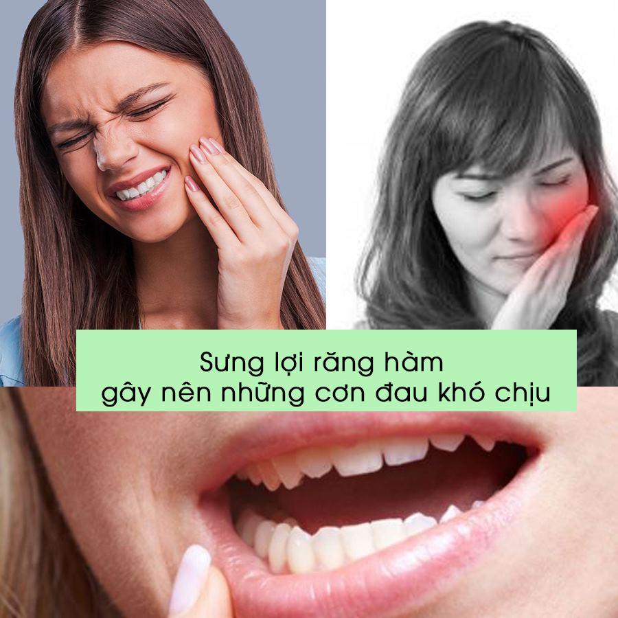 sưng lợi răng hàm có nguy hiểm không