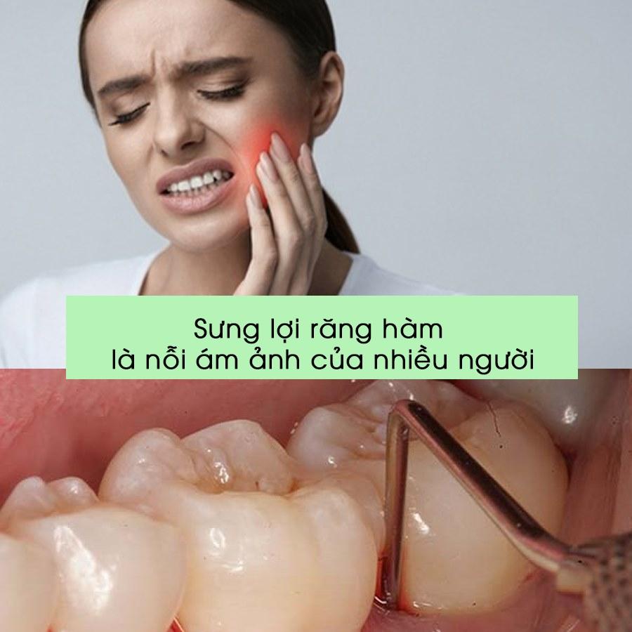 viêm lợi răng hàm phải làm sao