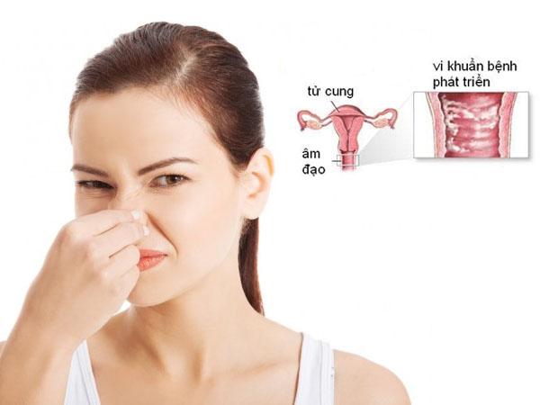 nguyên nhân vùng kín có mùi hôi