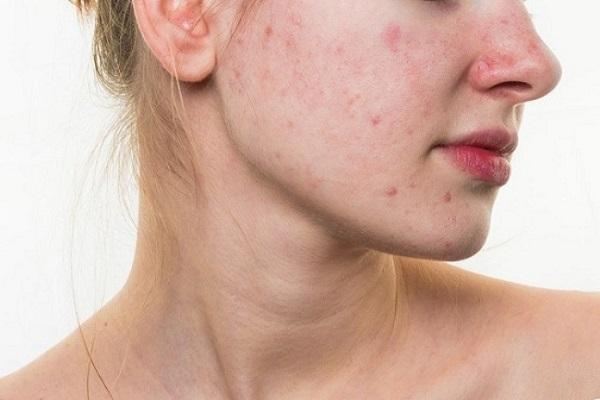 Da mặt ngứa và nổi mẩn đỏ