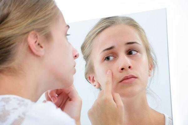 phòng bệnh Da mặt bị ngứa và nổi mụn