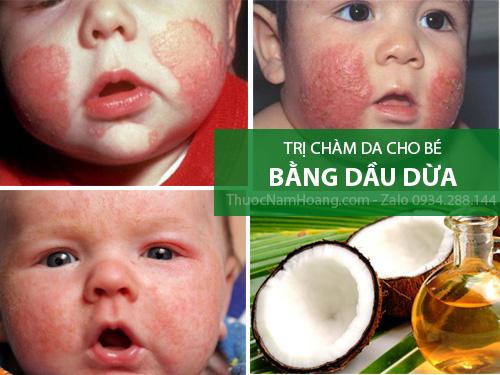 Cách trị bệnh bé bị chàm sữa bằng dầu dừa