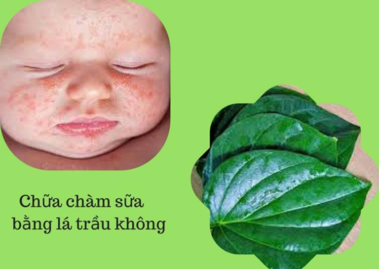 Lá trầu không hiệu quả trong việc trị bệnh chàm ở bé sơ sinh