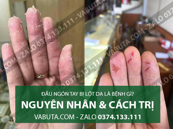 đầu ngón tay bị lột da