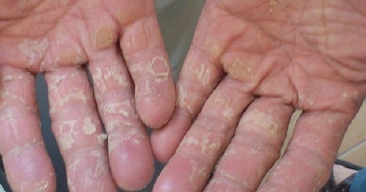 nguyên nhân dầu ngón tay bị lột da