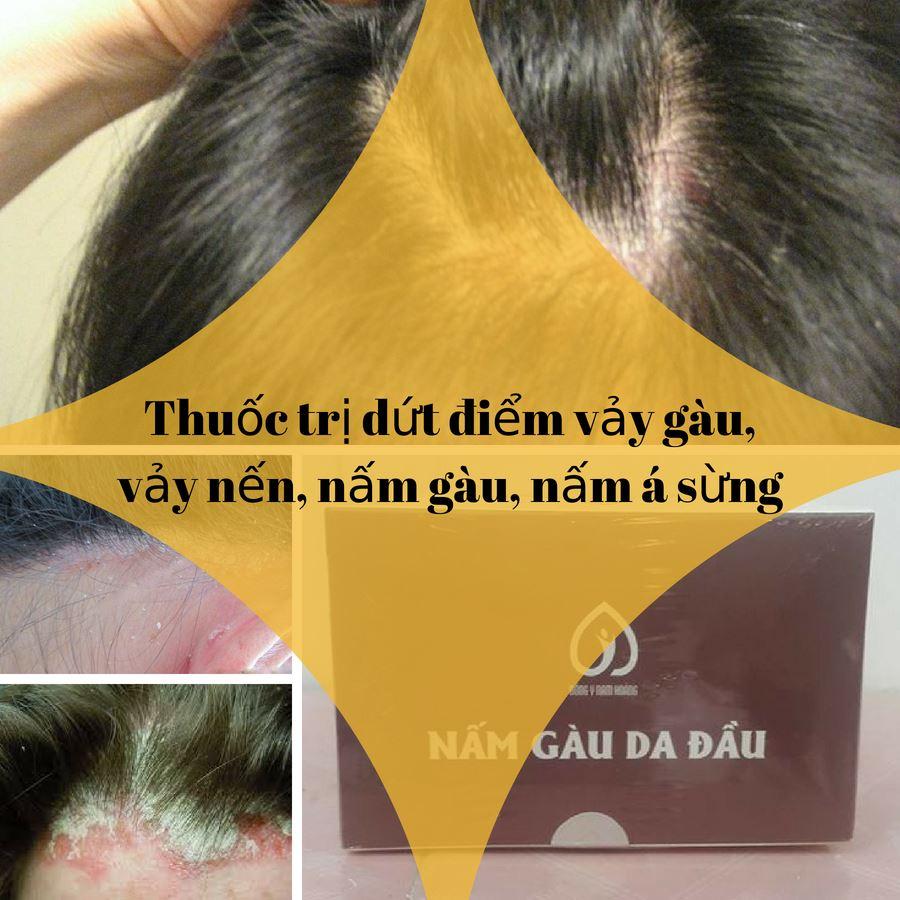 cách trị nấm tóc bằng đông y