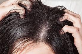 Da đầu bị ngứa và nổi mụn