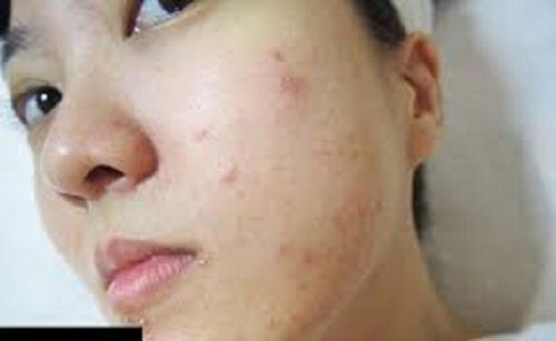 nguyên nhân Da mặt ngứa và nổi mẩn đỏ