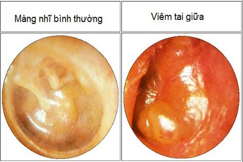 nguyên nhân viêm tai giữa có mủ