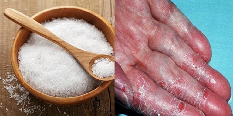 cách chữa tổ đỉa bằng muối và rau răm