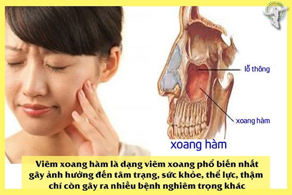 cách trị viêm xoang hàm