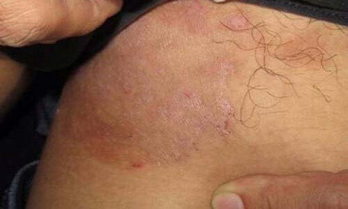 bệnh nấm bẹn