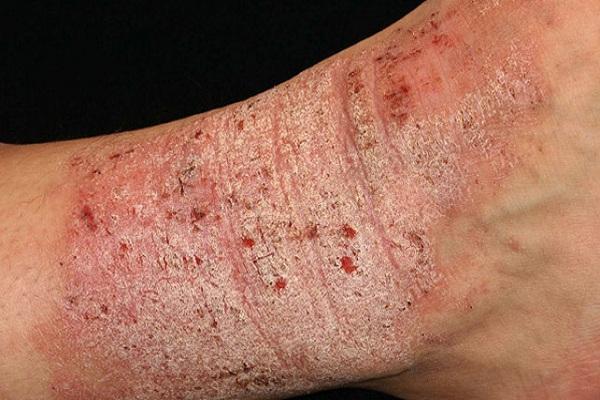 hình ảnh Bệnh chàm vi khuẩn