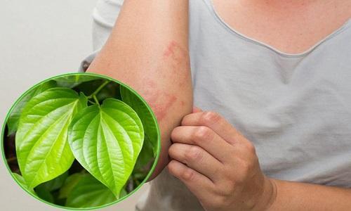 Cách điều trị bệnh chàm với lá trầu không