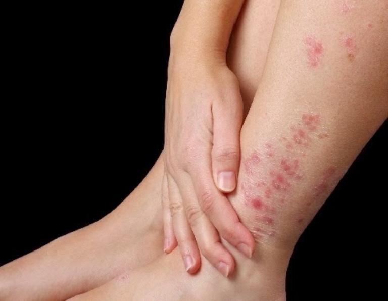 Bệnh Chàm tay chân