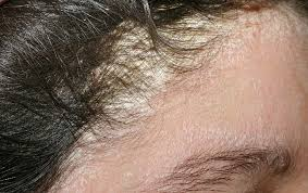 bệnh chàm da đầu