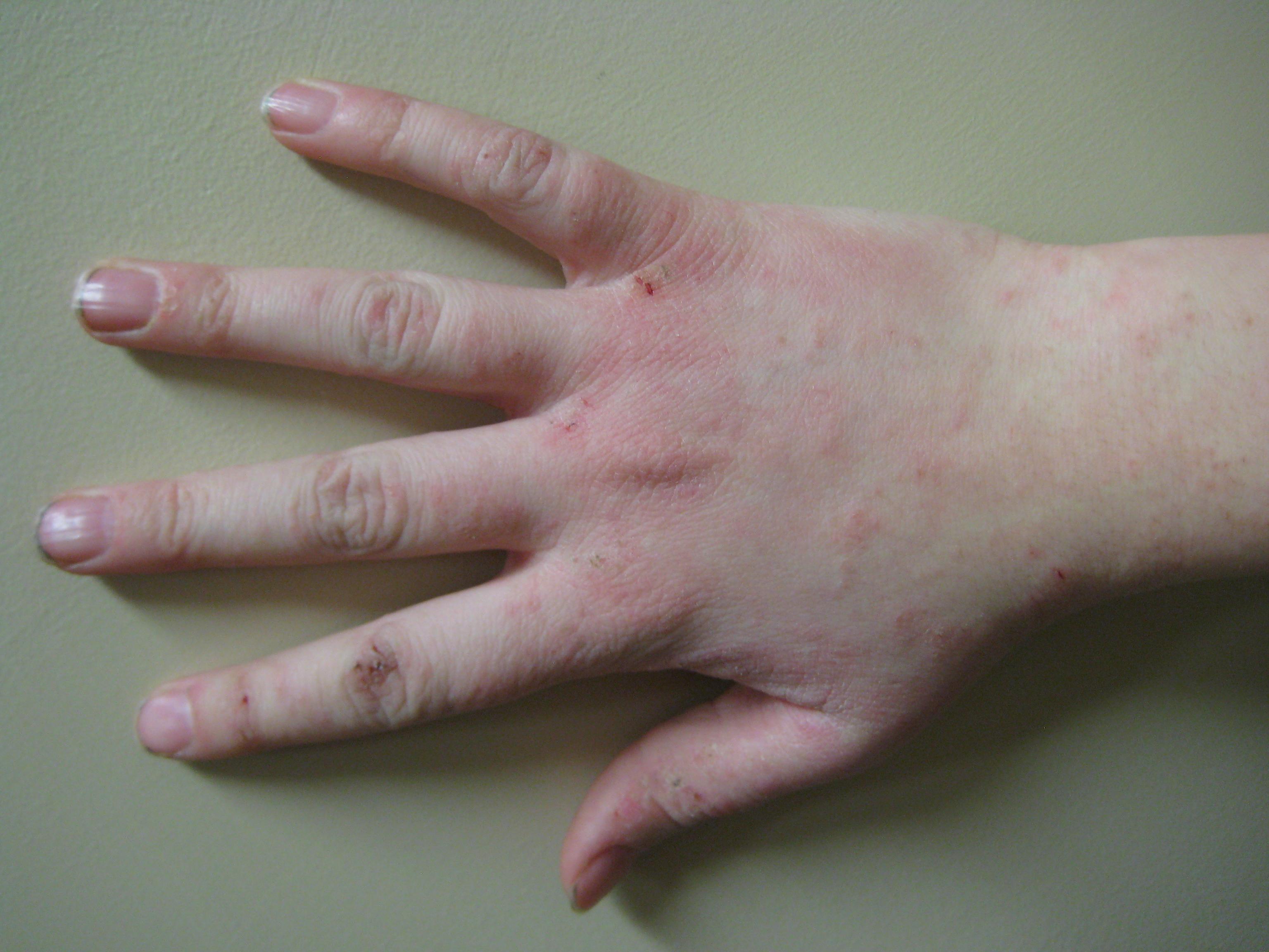 Bệnh chàm đối xứng
