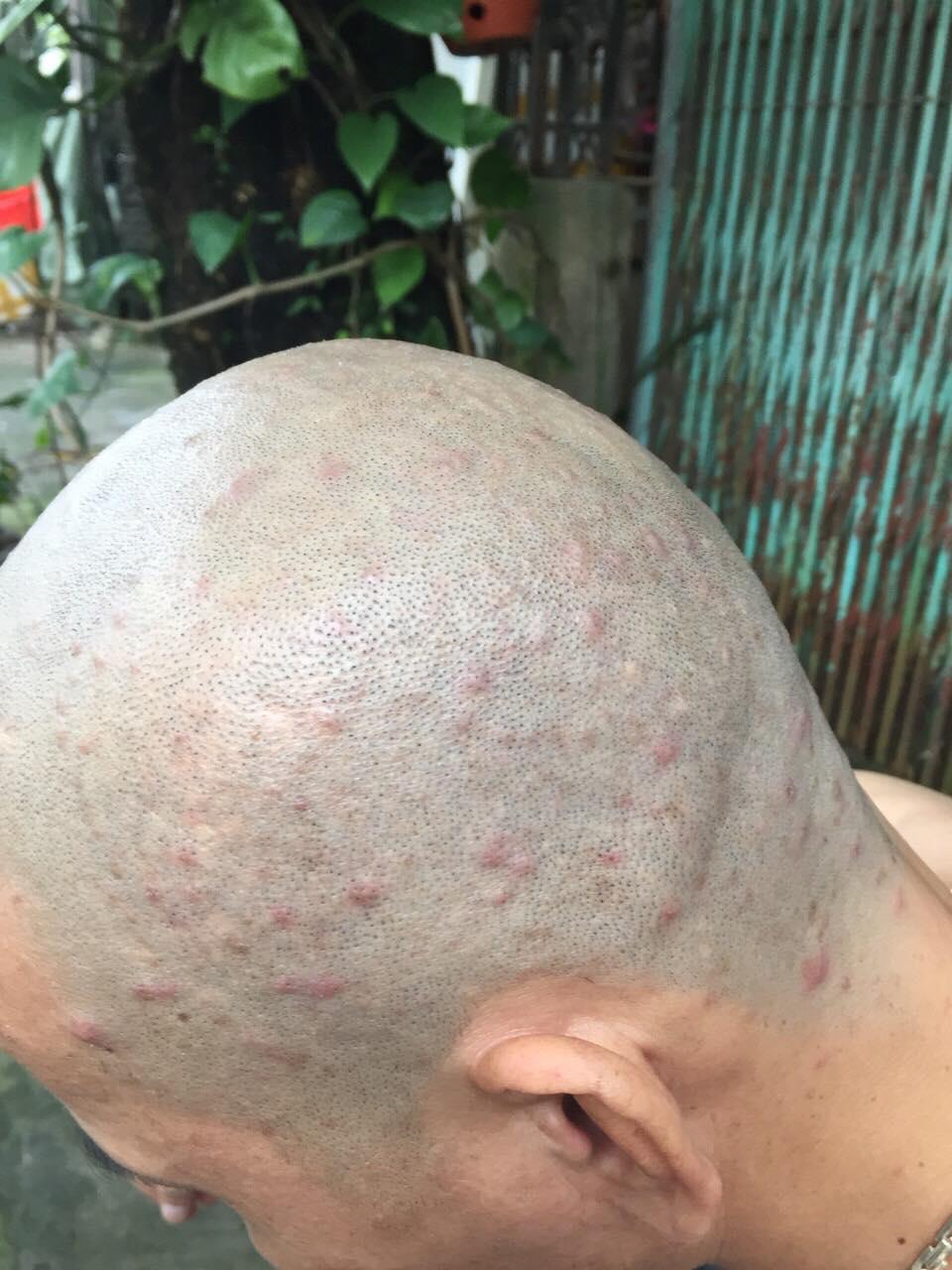 cách trị nấm da đầu bằng đông y