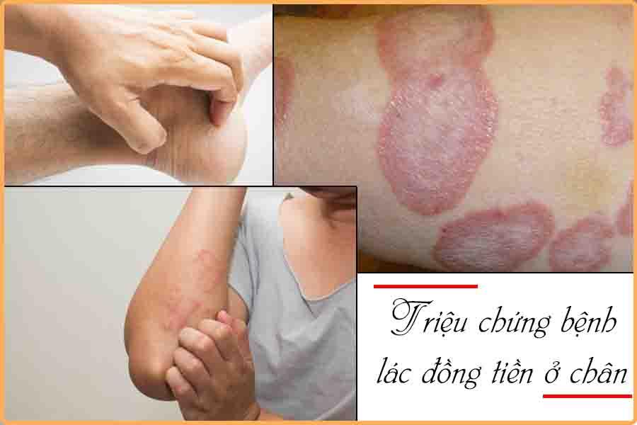 triệu chứng bệnh lác đồng tiền ở chân