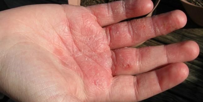 Bệnh Á sừng bàn tay