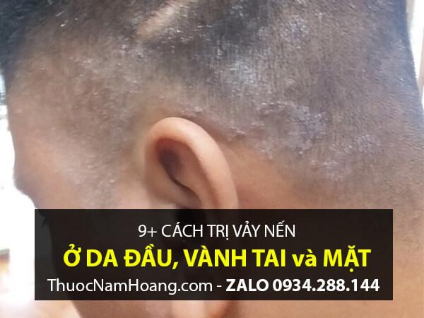 sử dụng muối biển Chết trị nấm da đầu