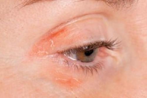 Triệu chứng của bệnh vảy nến trên mặt