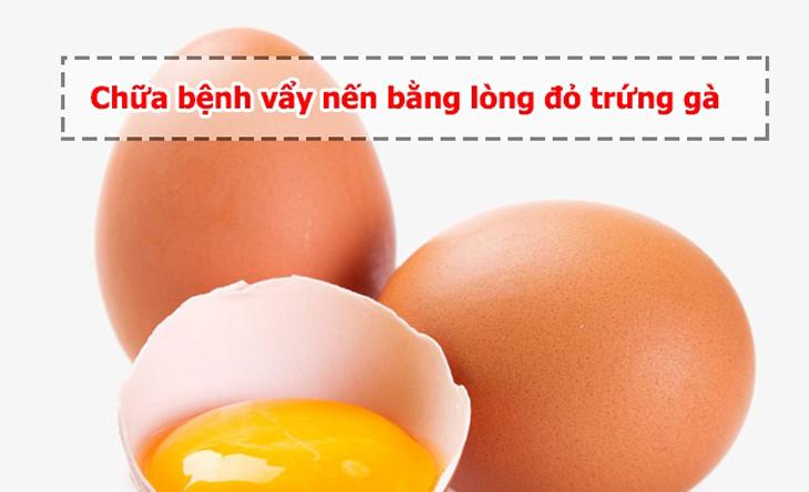 trị vảy nến bằng lòng đỏ trứng gà