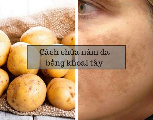 Trị nám da bằng khoai tây