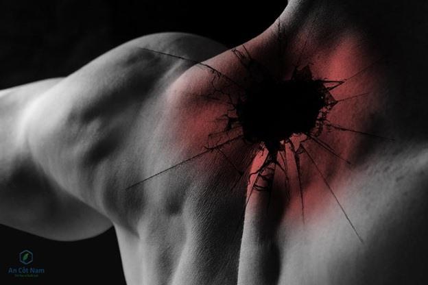 cách chữa đau vai gáy