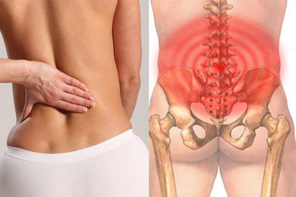 Chẩn đoán bệnh lúc bị đau lưng